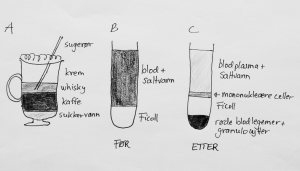 Irish coffee kan serveres lagdelt på grunn av ulik tetthet av væskene som inngår (A). I Bøyums metode blandes blod med saltvann og plasseres over det tyngre røntgenkontrastmiddelet Ficoll (B). Etter forsiktig sentrifugering blir blodcellene separert i ulike lag på grunnlag av deres fysiske egenskaper (C). De mononuklære cellene kan suges opp med pipette, på samme måte som man kan suge opp whiskeylaget i Irish coffee (A) med et sugerør.