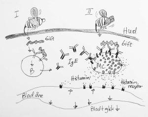 Første gang man stikkes av en humle vil giften kunne stimulere B-celler til å lage igE antistoffer. Neste gang man blir stukker, vil det være mastceller  (MC) i lærhuden som er dekket av disse IgE antistoffene. Giften vil binde seg til IgE på mastcellene, som så tømmer ut små blærer med histamin til vevet. Histamin får blodkarene til å utvide seg, så blodtrykket faller.