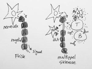 Nervetrådene er pakket inn i fettputer eller myelin. Ved MS blir disse putene stedvis borte. Vi tror immunceller bidrar til tapet. Enten ved direkte angrep på myelinet, eller som et resultat av en betennelse i nærheten av myelinet.
